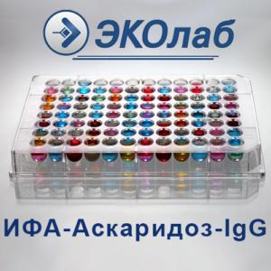 ИФА-Аскаридоз-IgG