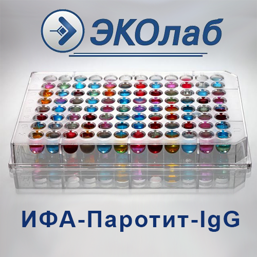 ИФА-Паротит-IgG
