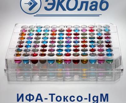 ИФА-Токсо-IgМ